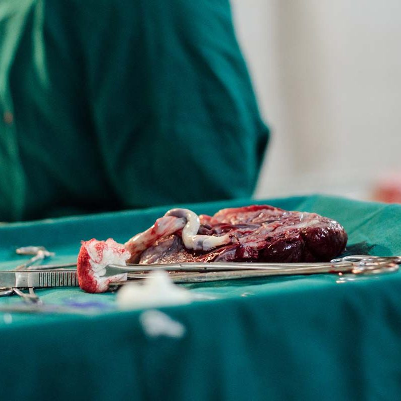 Freshly removed placenta after C-section in Indian hospital.